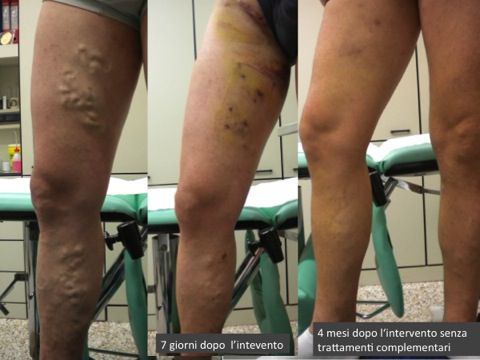 Polyenzymatic a thrombophlebitis