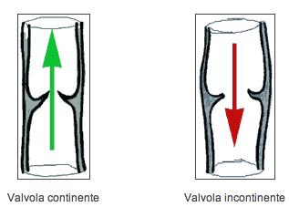 Operazione su rimozione di vene su una gamba nel modo in funzione per un pagamento o no