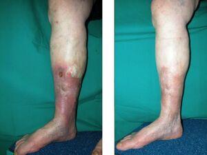 CHIVA e vene varicose ulcera
