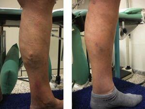 Dermatite di atopic durante gravidanza