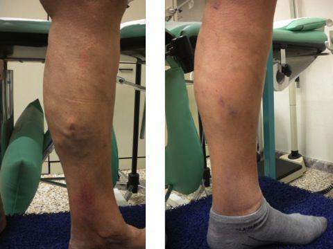 Thrombophlebitis su un gomito