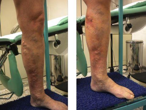 Trattamento di clinica di eczema secco