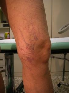 Capillari e cellulite, trattamento scleroterapia