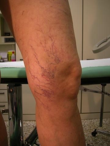 Trattamento di varicosity e sintomi