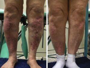 Eczema mostruoso bilaterale