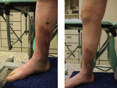 Le gambe dopo trombosi fanno male