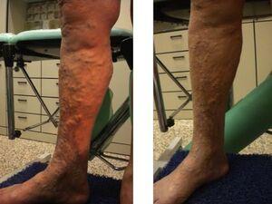 Vene varicose recidive dopo stripping e complicate da ipodermite.