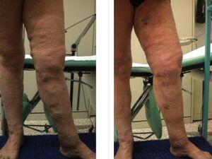 Donna in sovrappeso con voluminose varici ed ulcera recidiva. Esiti di una cura CHIVA dopo 3 mesi.