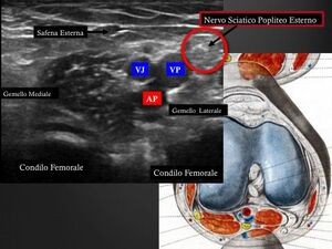AnatomiacavopopliteoEco
