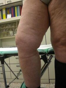 Risultato dopo re-intervento