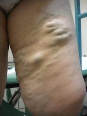 Vene varicose recidive