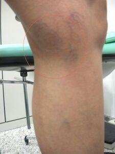 Pigmentazione e capillari dopo Laser per Vene Varicose insorte a causa di ustione del sottocutaneo