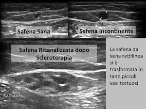 Ricanalizazione safena dopo scleroterapia