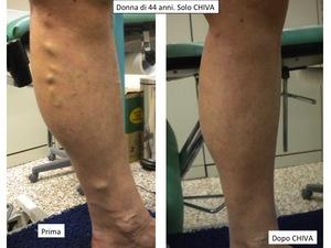 Donna di 44 anni, prima e dopo la cura CHIVA