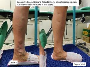 risultato di un trattamento chiva in una paziente di 58 anni